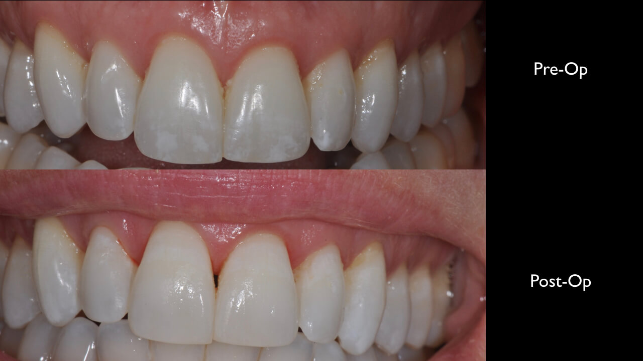 treating white spot lesions