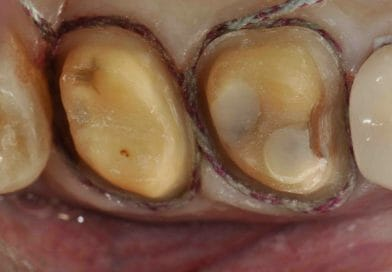 Restorative Tips: Successful Intracrevicular Tooth Preparation