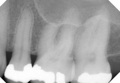 Occlusion Makes a Difference for Patients With Periodontitis