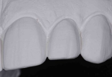Shrink Wrap Provisional Technique for Predictable Veneers: Part 1