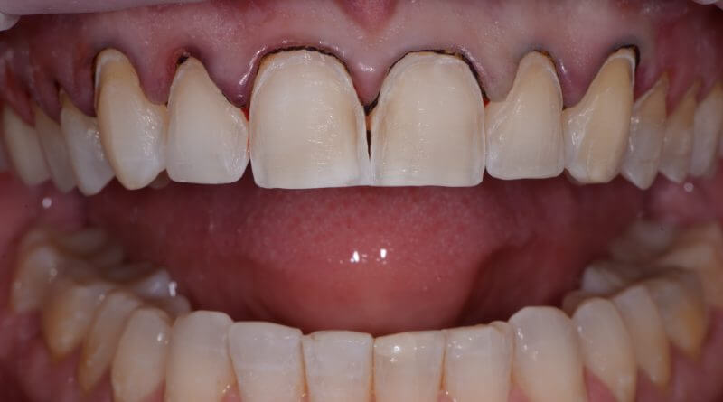 Shrink Wrap Provisional Technique for Predictable Veneers: Part 2