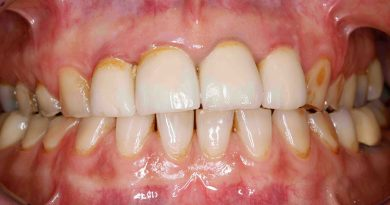 Occlusal Wear Part 2: What is causing the wear?