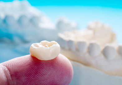 2 Transformative Tips to Leverage Phased Therapy for Single Tooth Dentistry