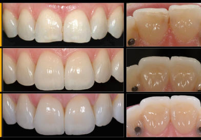 4 Questions You Should Be Able to Answer To Improve Your Success With Indirect Bonded Anterior Restorations